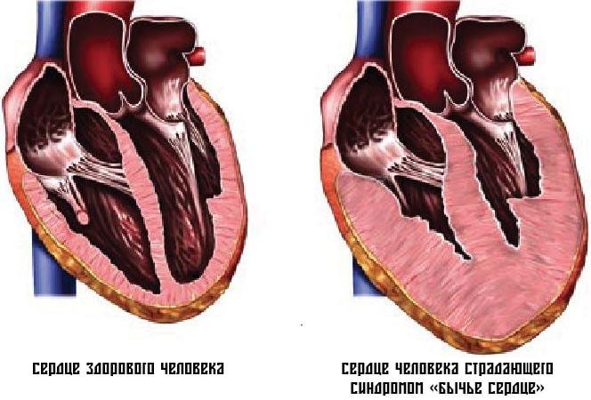 Синдром Бычье Сердце