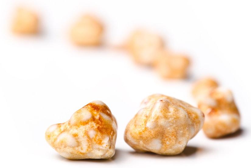 Мочевые камни